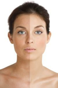 Intense Pulse Light for Sun Damage Correction